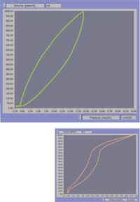 Linear Test Lung compliance curve is linear and predictable. (top) Other bag-style lung curves are not predictable. (bottom)